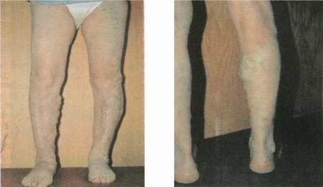 Варикозная болезнь подкожных вен ног лечение в Киеве